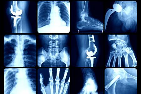 Funcionamiento de rayos X